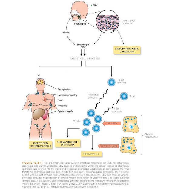 Role of Epstein-Barr virus (EBV) in infectious mononucleosis (IM), nasopharyngeal carcinoma, and Burkitt lymphoma