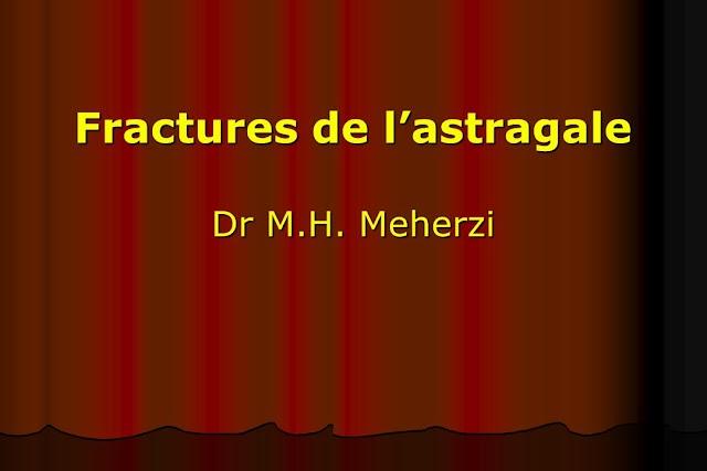 Fractures de l'astragale .pdf