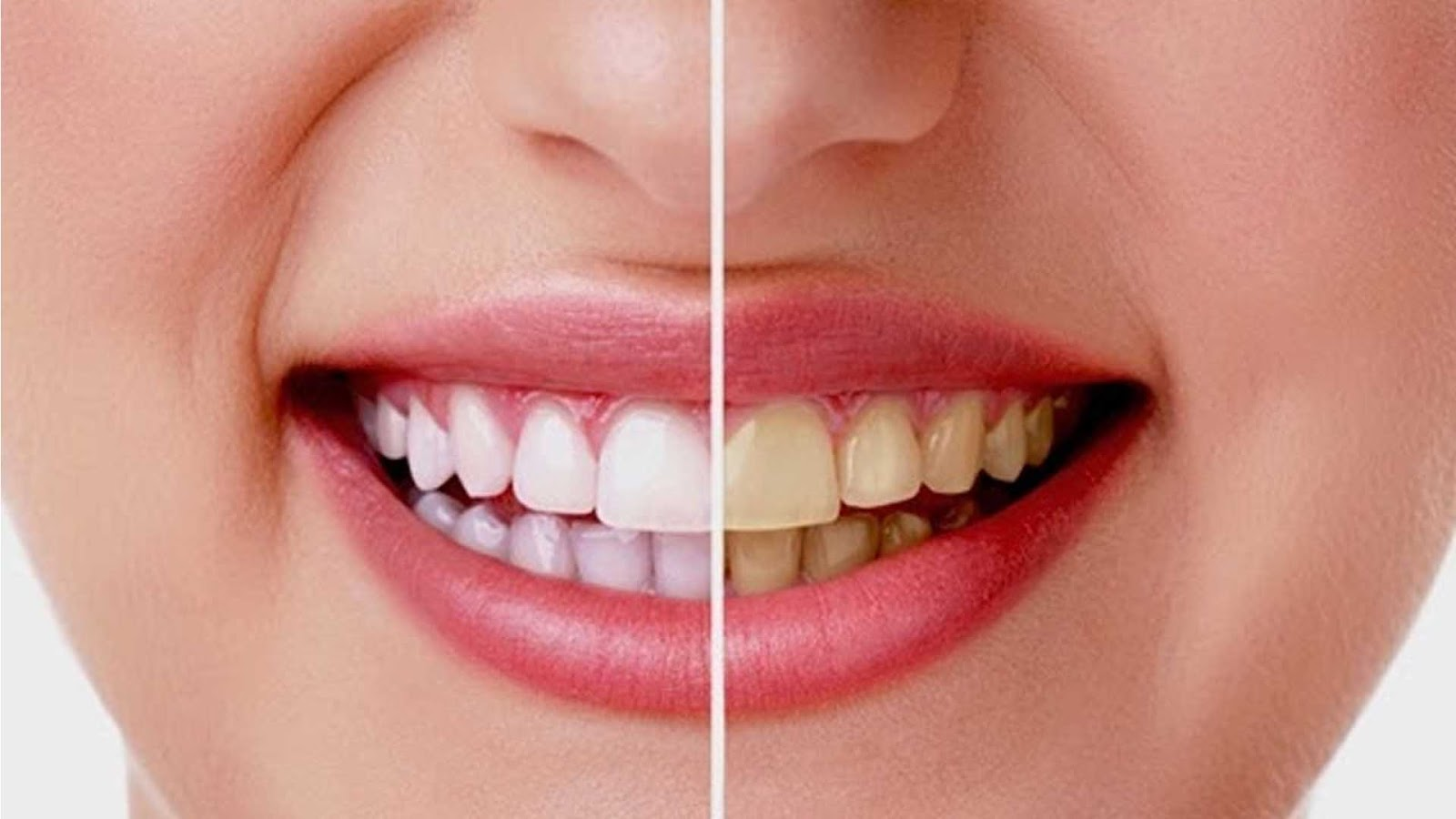 5 Cara Cepat Memutihkan Gigi Secara Alami Sehat Betul