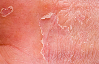 Bekas luka terasa gatal