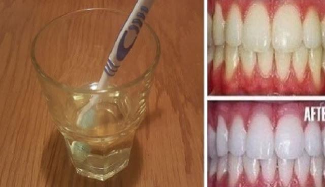 Cara Membuat Gigi Putih Dalam 3 Menit Hanya Menggunakan Ini 4e09da4389