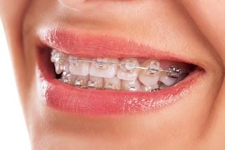 Mengapa Karang Gigi Mudah Terbentuk Pada Pasien Pemakai Behel?