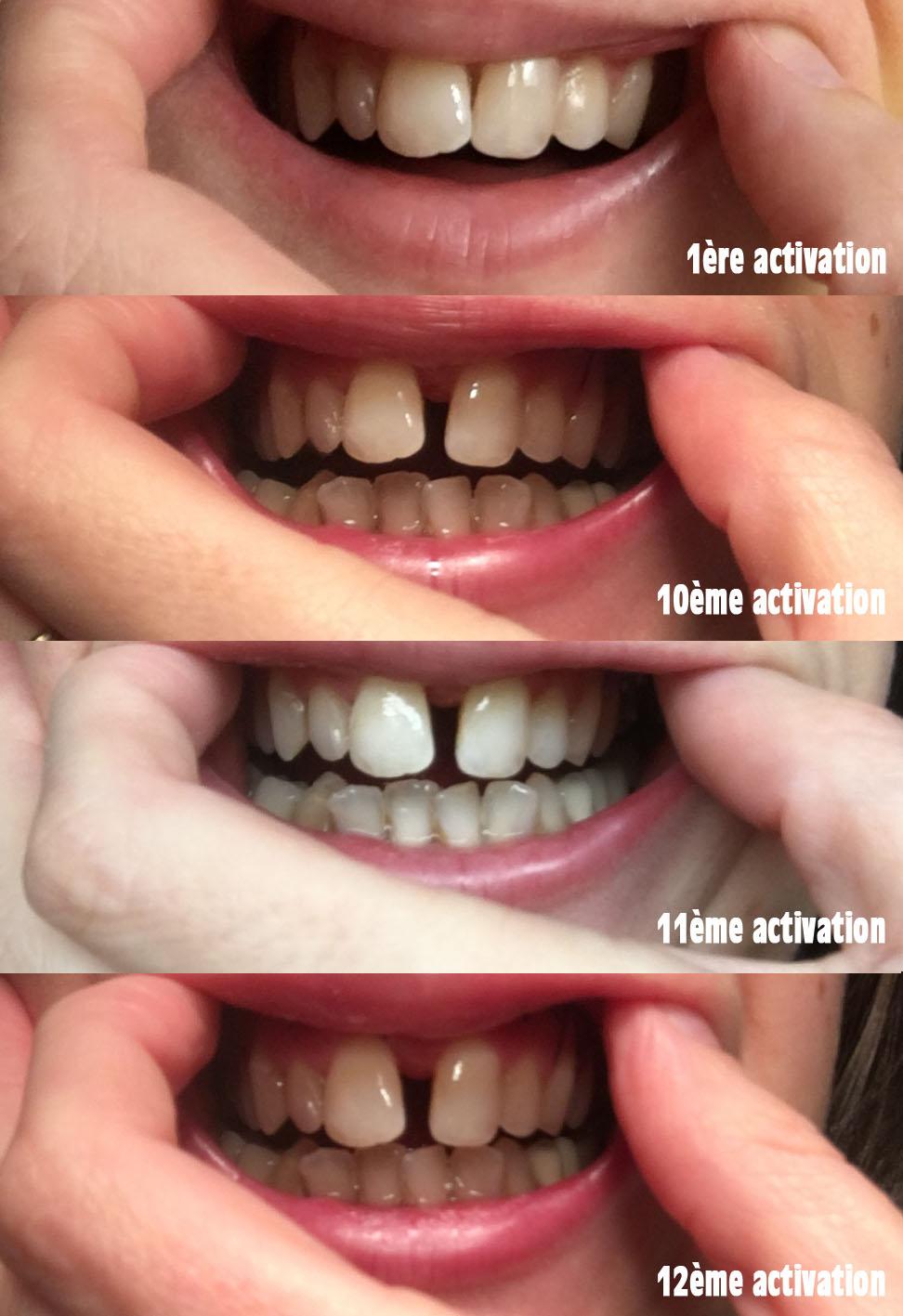 Combien de dents dans la bouche adulte