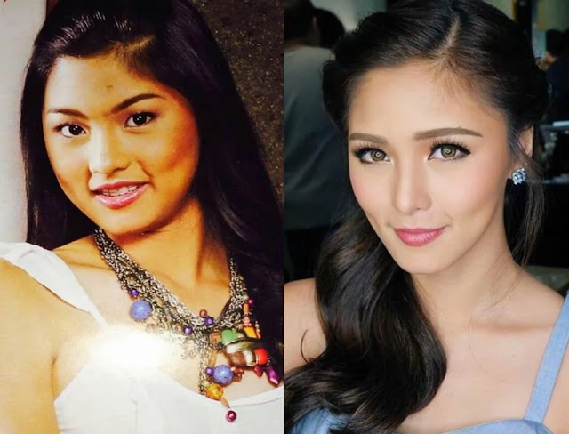 Then And Now: 7 Most Beautiful Pinay Celebrities in Photos! #3 Is Unbelievable!