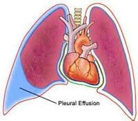 An image to describe Pleural effusion