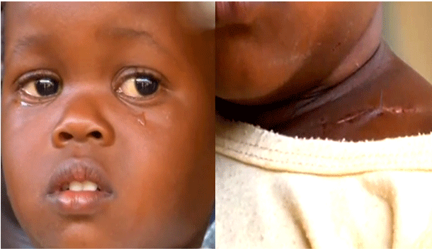 2-year old girl survives gunshot wound amidst protests in Kenya