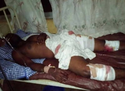 armed robbers injured iwo road ibadan