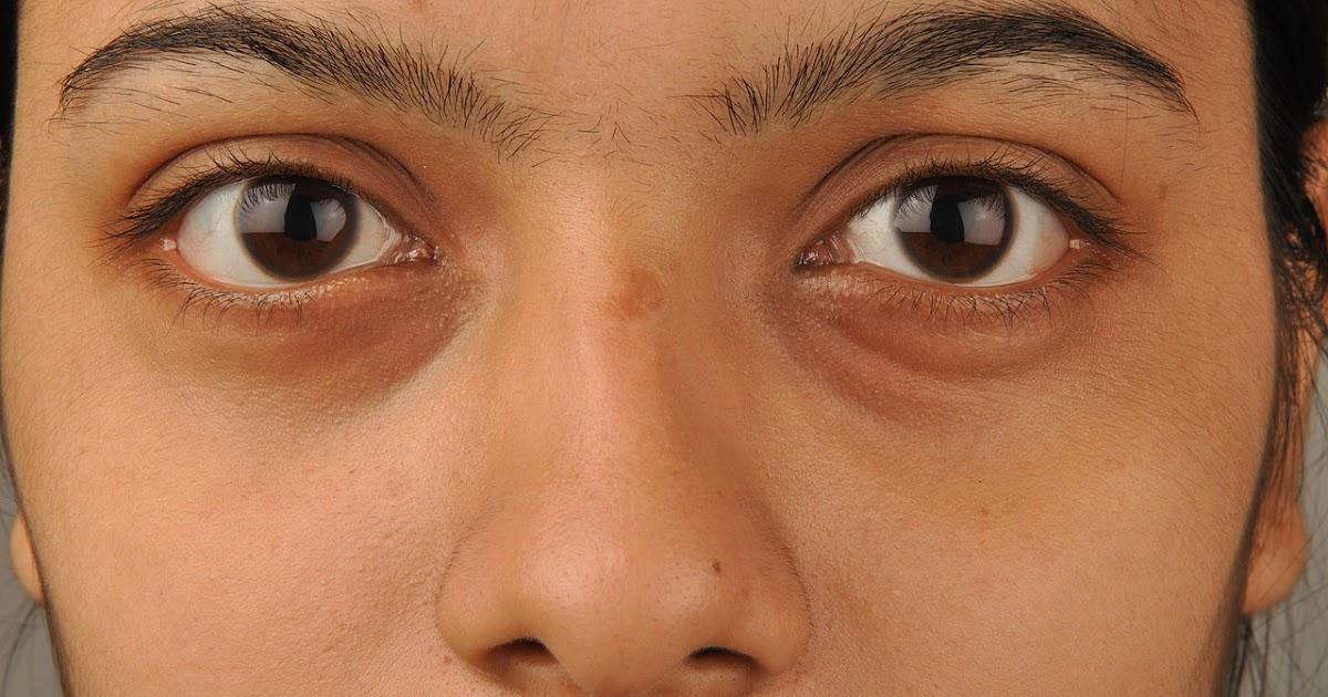 Que quitar el hinchazón del ojo después de la quemadura