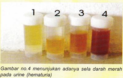 Penyebab Kencing Berdarah & Obat Alami Kencing Berdarah ( Hematuria )