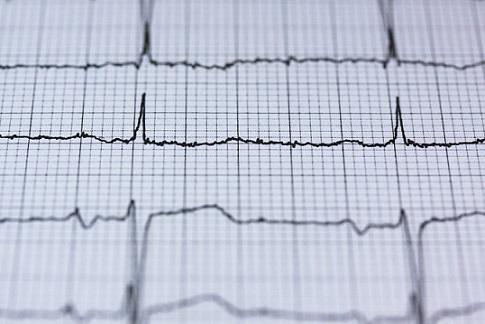 Imagem de um eletrocardiograma