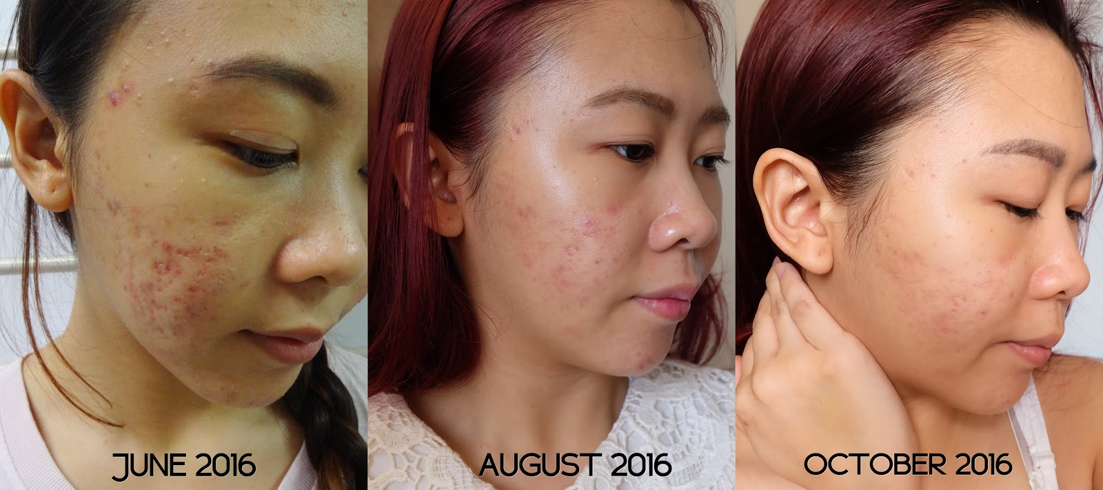 100 Days With Clinique 3-Step Skincare System