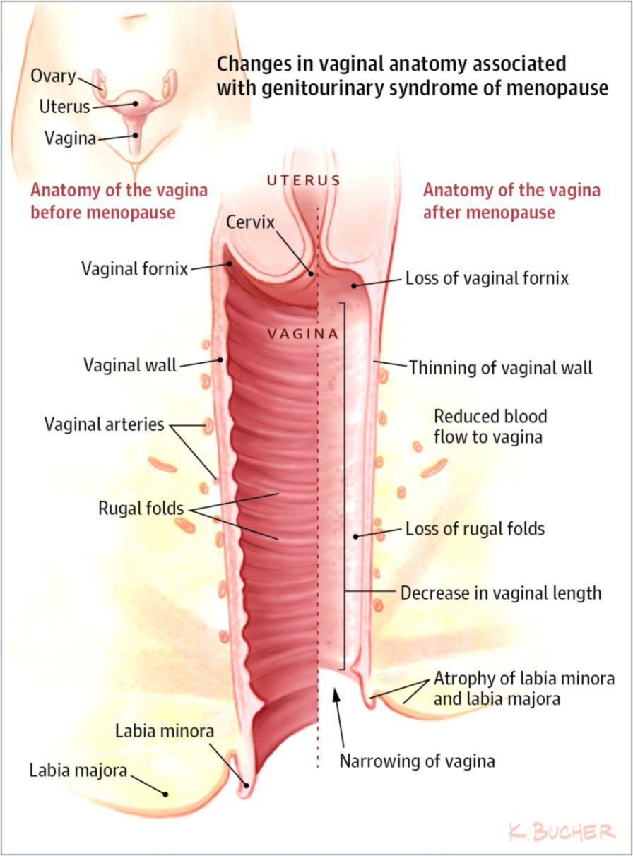 hight resolution of vaginal and urinary symptoms of menopause patient information
