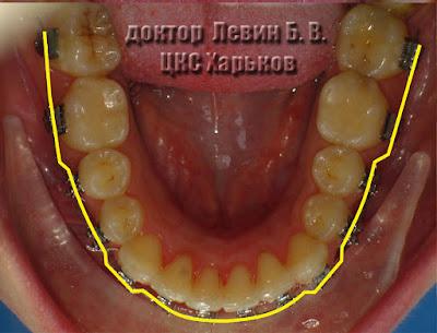 На фото с зубным рядом нанесена линия проходящая вдоль вестибулярных поверхностей зубов