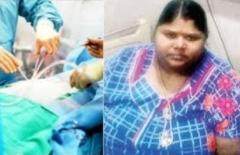 Koppiyam 27-09-2017 Woman Dies After Bariatric Surgery