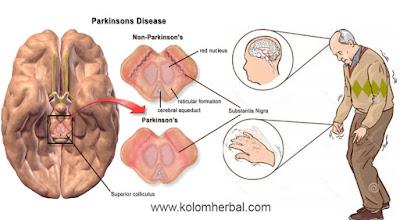 Cara Mengobati Penyakit Parkinson