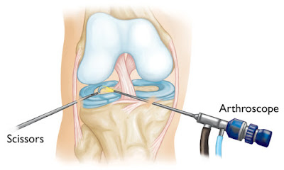 Arthroscopy Knee