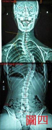脊椎側彎矯正架, 脊椎側彎惡化, 脊椎側彎矯正, 脊椎側彎 物理治療, 脊椎側彎復健, 脊椎側彎治療, 姿勢體態矯正