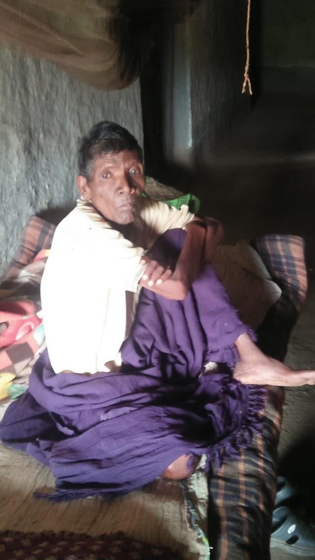विडंबना-स्वास्थ्य सेवा के अभाव में दम तोड़ता पहाड़ी कोरवा,कभी स्व दिलीप सिंह जूदेव के साथ कंधे से कंधा मिलाकर चलते थे,अब नहीं मिल पा रहा मुकम्मल इलाज