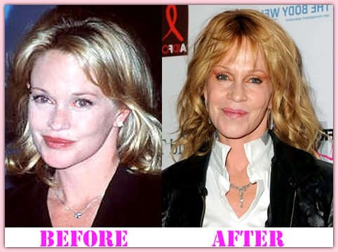 Melanie Griffith And Plastic Surgery
