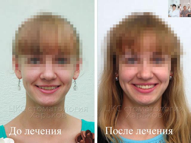 стоматолог-ортодонт решает задачу улучшения улыбки
