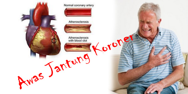 gejala jantung koroner