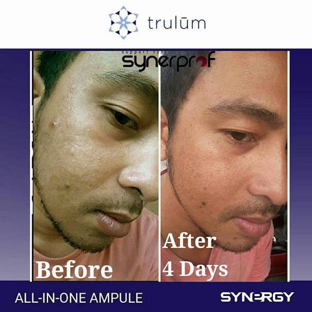 Jual Serum Penghilang Keriput Trulum Skincare Karamat