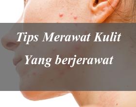 Tips merawat kulit yang berjerawat