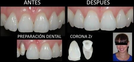 Corona dental antes y despues de adelgazar
