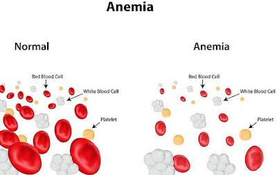 Apa Penyebab & Gejala Tekanan Darah Rendah?