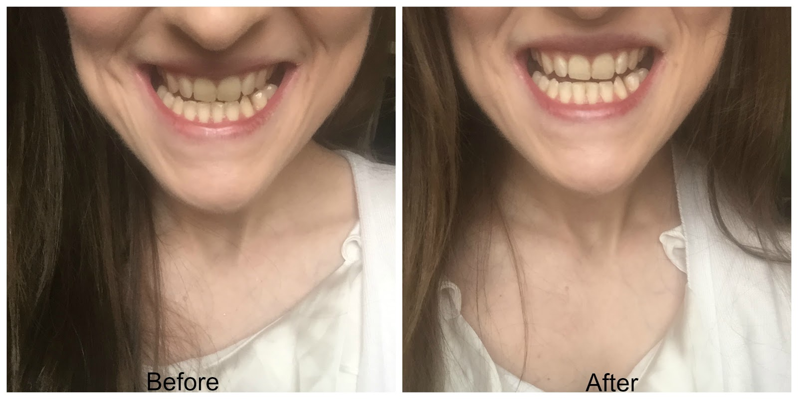 before and after smilelab whitening strips