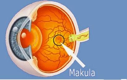 Penyakit Degenerasi Makula pada Mata