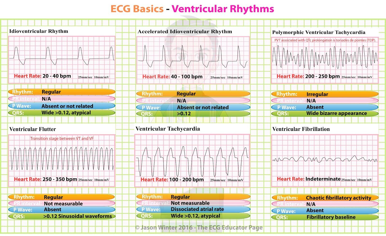 Ecg Educator Blog Ventricular Rhythms