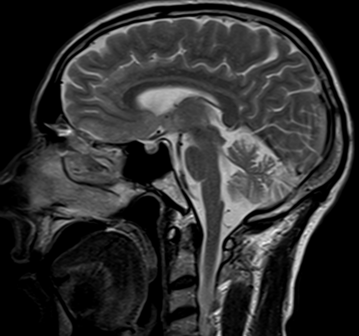 Radiodiagnosis Imaging Is Amazing Interesting Cases