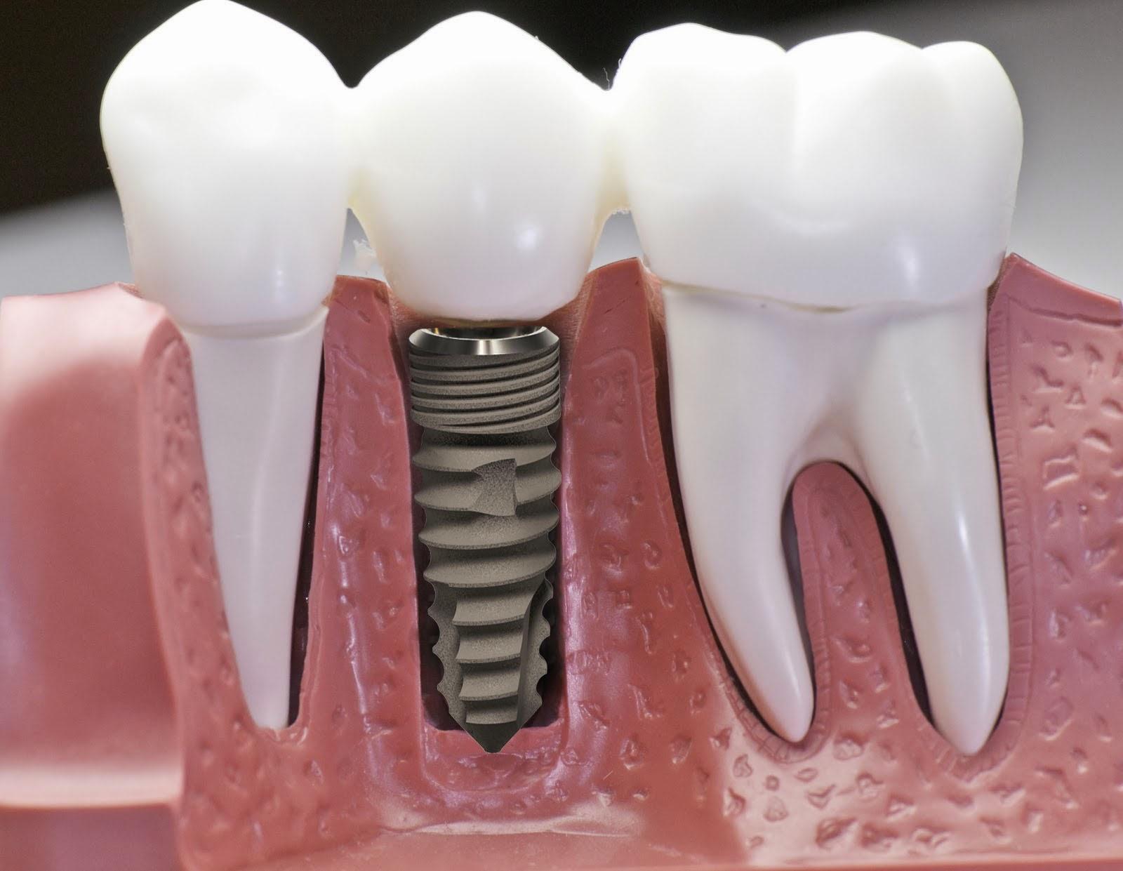 Kết quả hình ảnh cho Viêm quanh implant