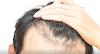 Ilmuwan Jepang Temukan Cara Menumbuhkan Rambut Dalam Hitungan Hari