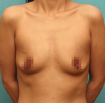 짱이뻐! - Gained Back My Breast After Giving Birth