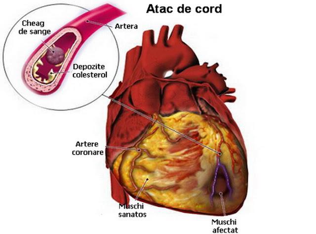 practicata in timp util, aceasta metoda poate salva viata persoanelor care au suferit un atac de cord