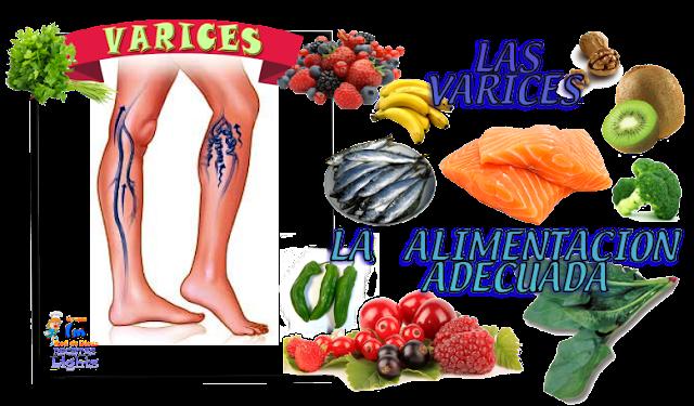 Alimentación Varices