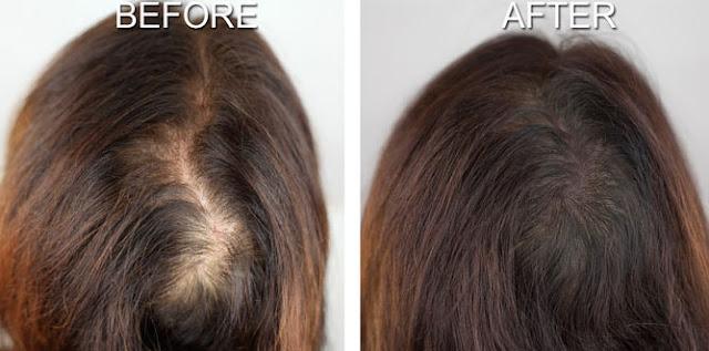 طريقة علاج سقوط الشعر بالأعشاب