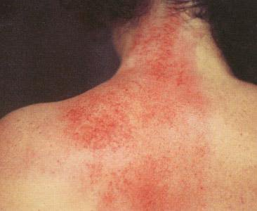 Gua Sha Or Quot Graston Quot For Musculoskeletal Pain