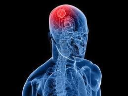 Información tumor cerebral tipos y sintomas