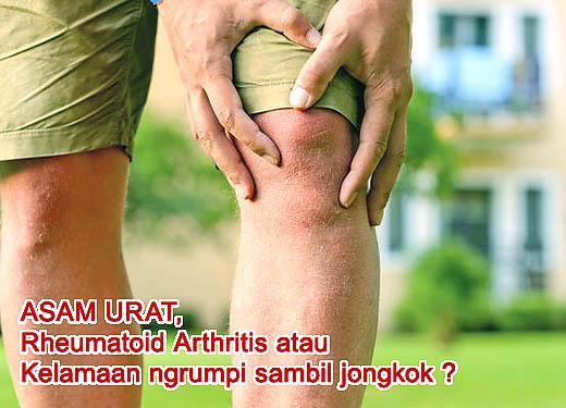 Nyeri di lutut tidak selalu gejala asam urat