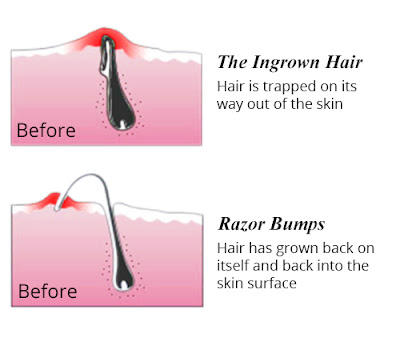 How to Get Rid of Ingrown Hair and Razor Bumps. Difference Between Ingrown Hair and Razor Bumps