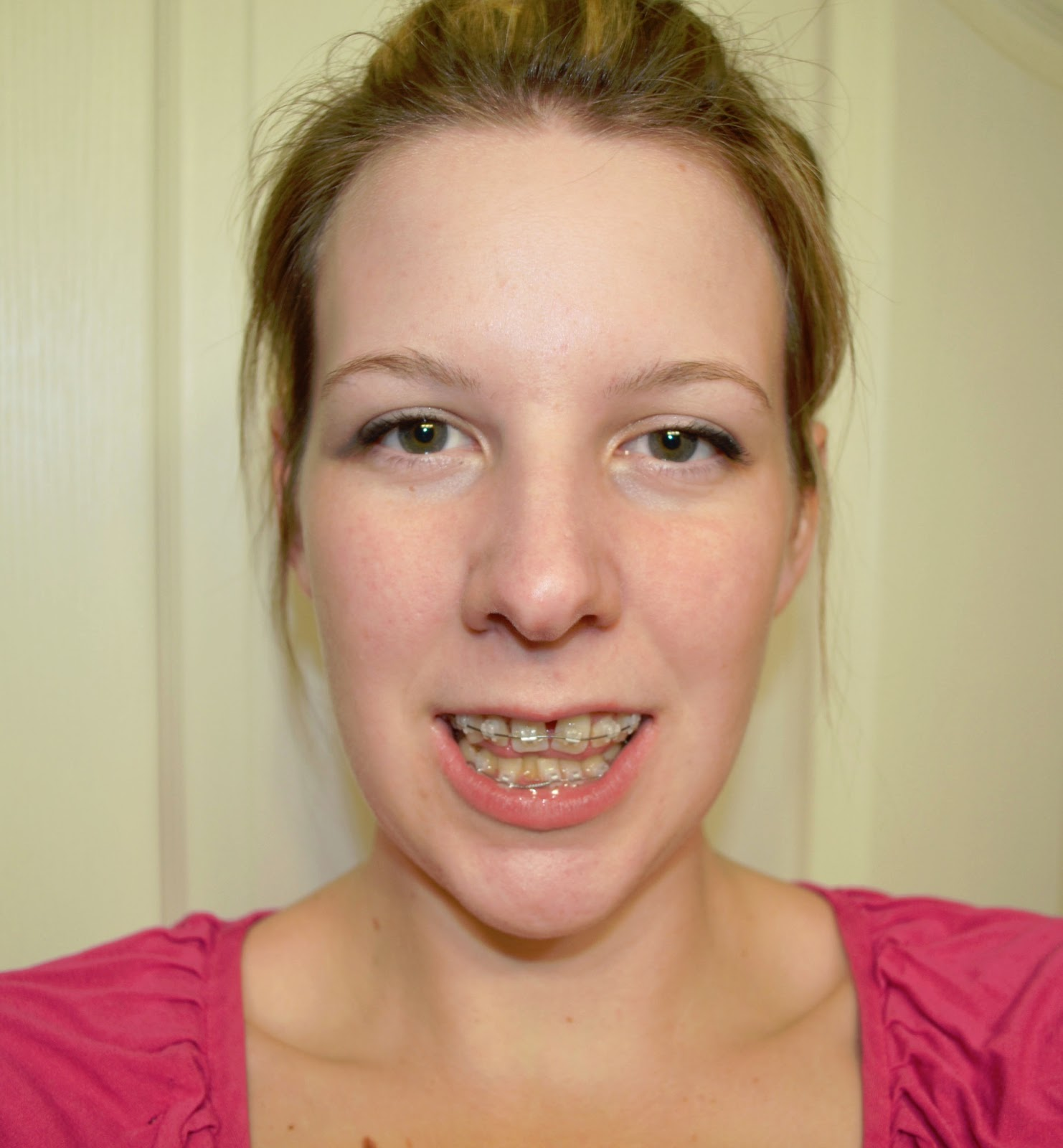 Amy's SARPE Adventure: Owwwww :( Bottom Braces On