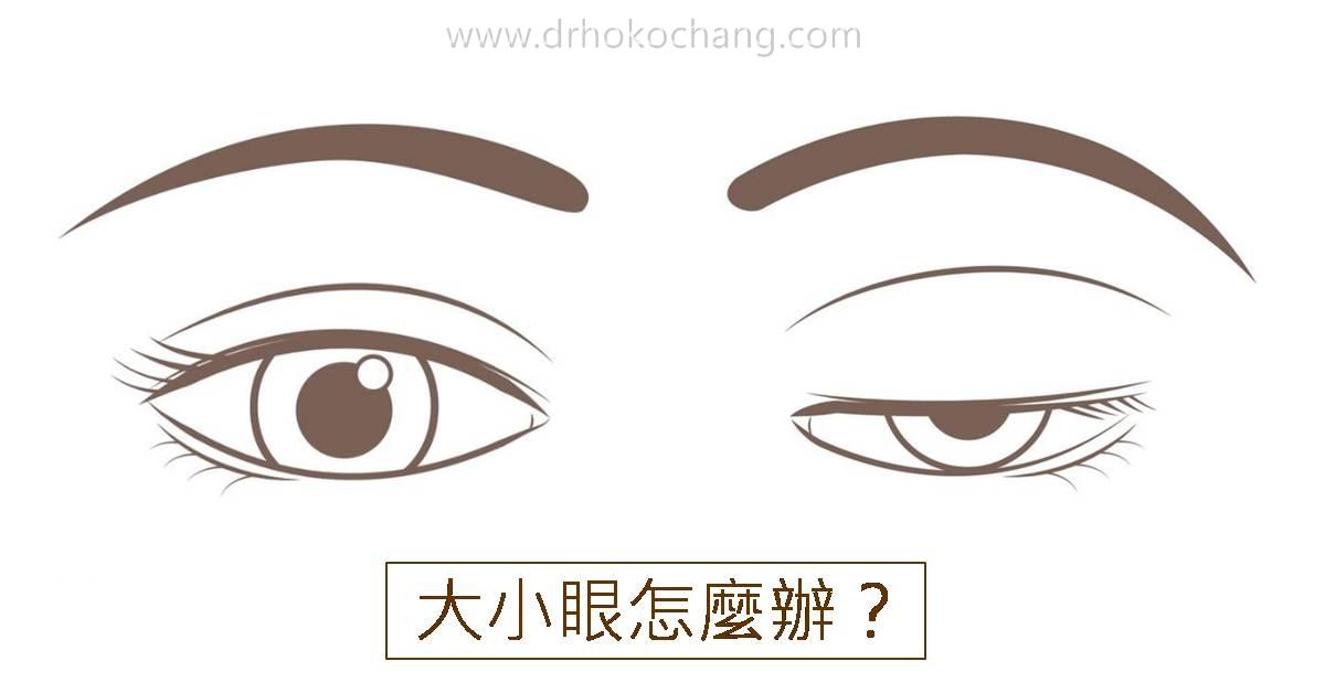 大小眼提眼肌手術台中推薦-ptosis01
