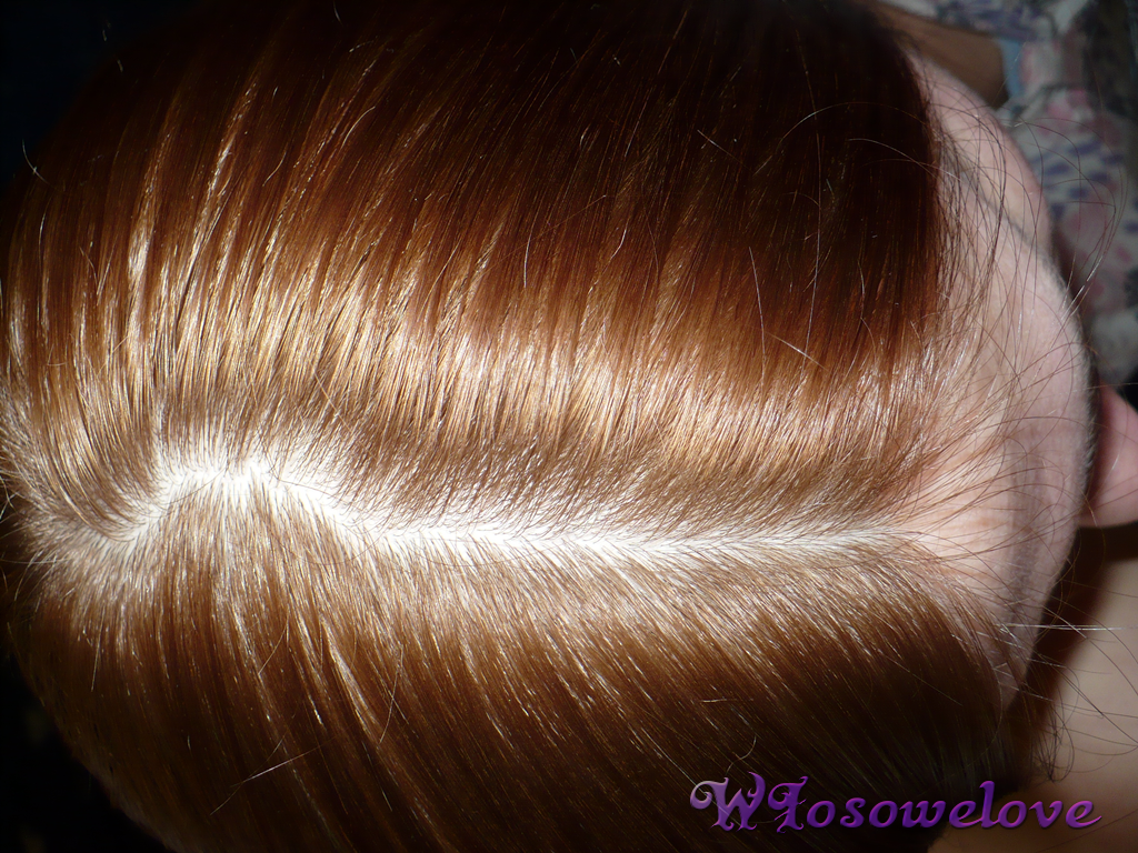wypadanie włosów po operacji bariatrycznej