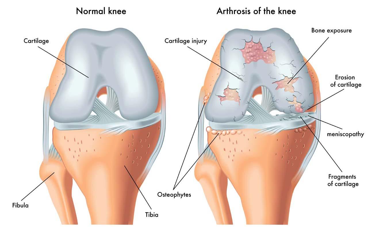 Knee anatomy pain symptoms