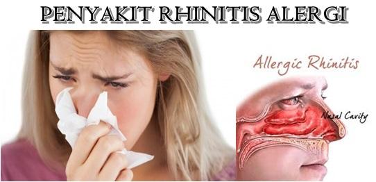 Gejala, Penyebab, dan Cara Mencegah Rhinitis Alergi