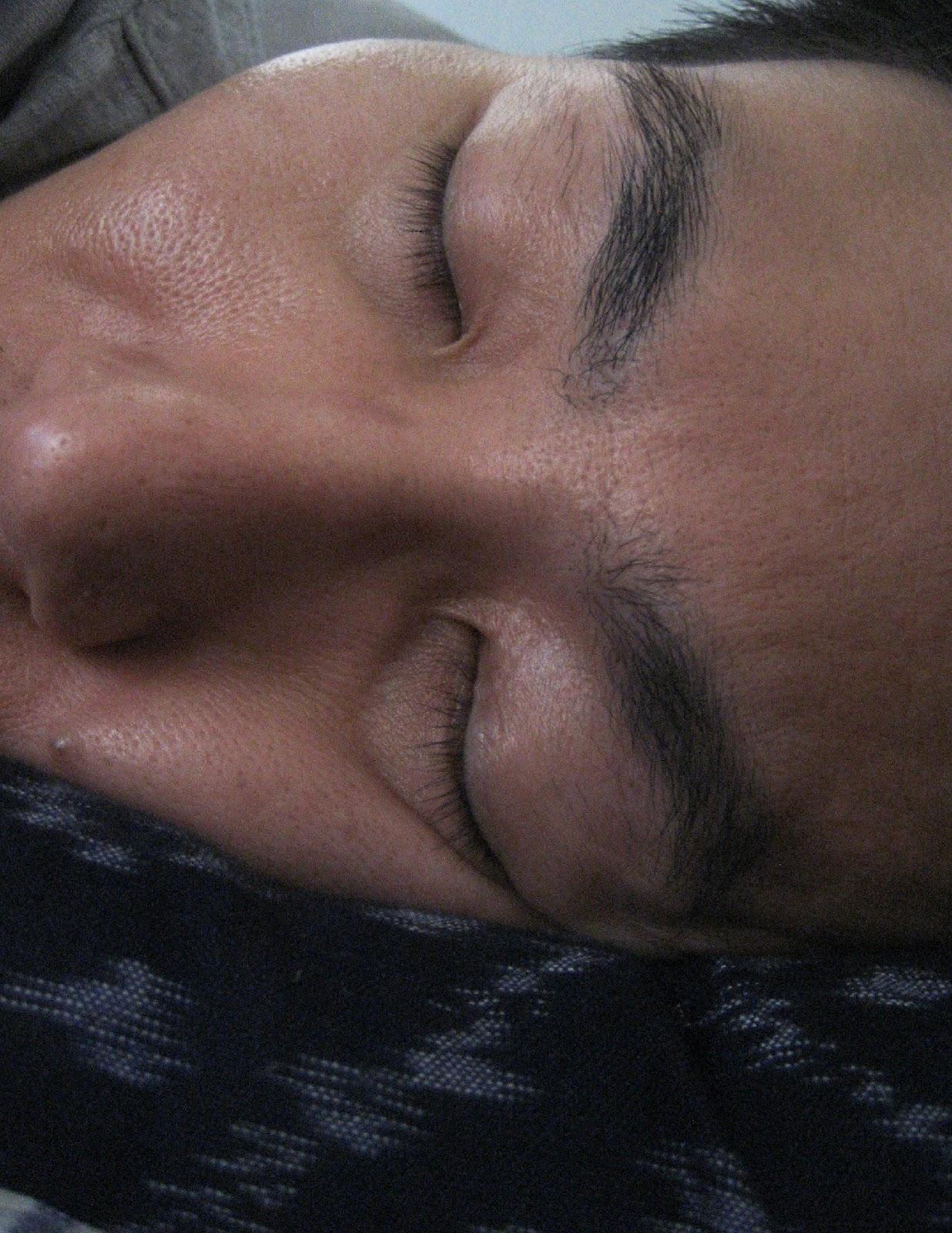 The Aesthetic Doctors Blog Sleep Lines  Why Sleeping