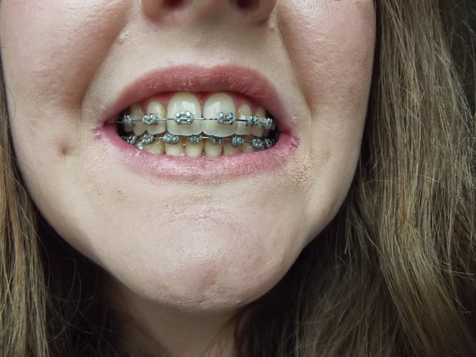 a photo of teeth with braces during orthodontic treatment